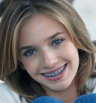 braces-for-children