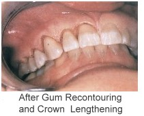 After Gum Contouring and Crown Lengthening