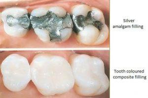 metal-free-dentist-san-diego