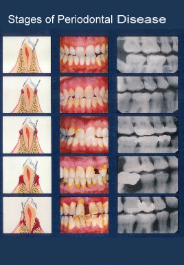 periodontal-disease-page