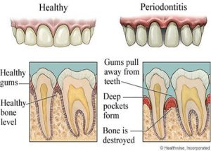 periodontal-disease-rev1