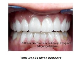 Teeth with porcelain veneers