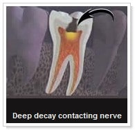 Root Canal Therapy San Diego