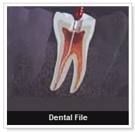 root_canal_therapy_3