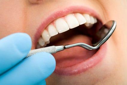 teeth-cleaning-san-diego-page