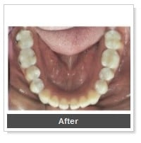 tooth-colored-fillings-san-diego_2