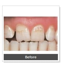 tooth-colored-fillings-san-diego_3