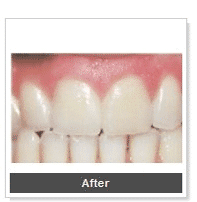 tooth-colored-fillings-san-diego_4-rev