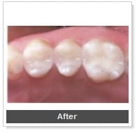 white-fillings_2