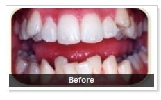 Before Straight Teeth in 6 Months