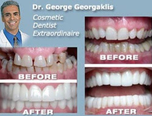 San Diego Cosmetic Dentist
