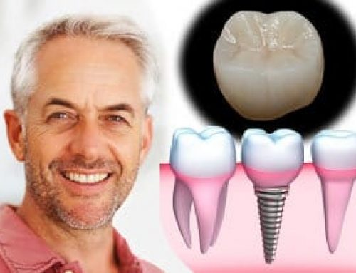 San Diego Implant Dentist