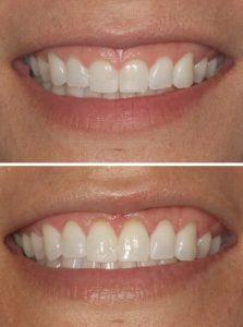 Benefits of Gum Contouring and Gum Sculpting