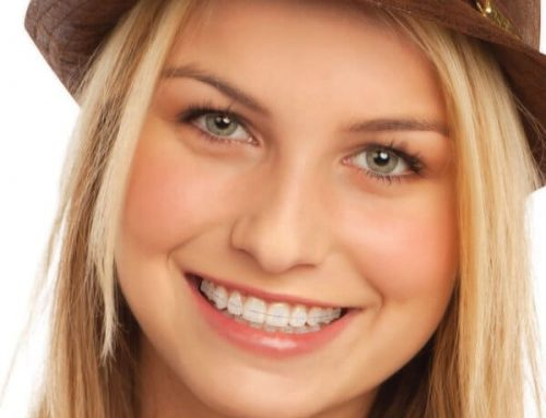 "Straight Teeth in 6 Months: ""Fast, Safe and Affordable Orthodontics"" in La Jolla"