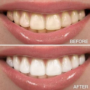 Before and After - Teeth Whitening Example