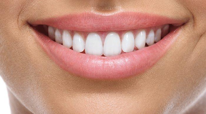 Straight Teeth - 6 Month Braces