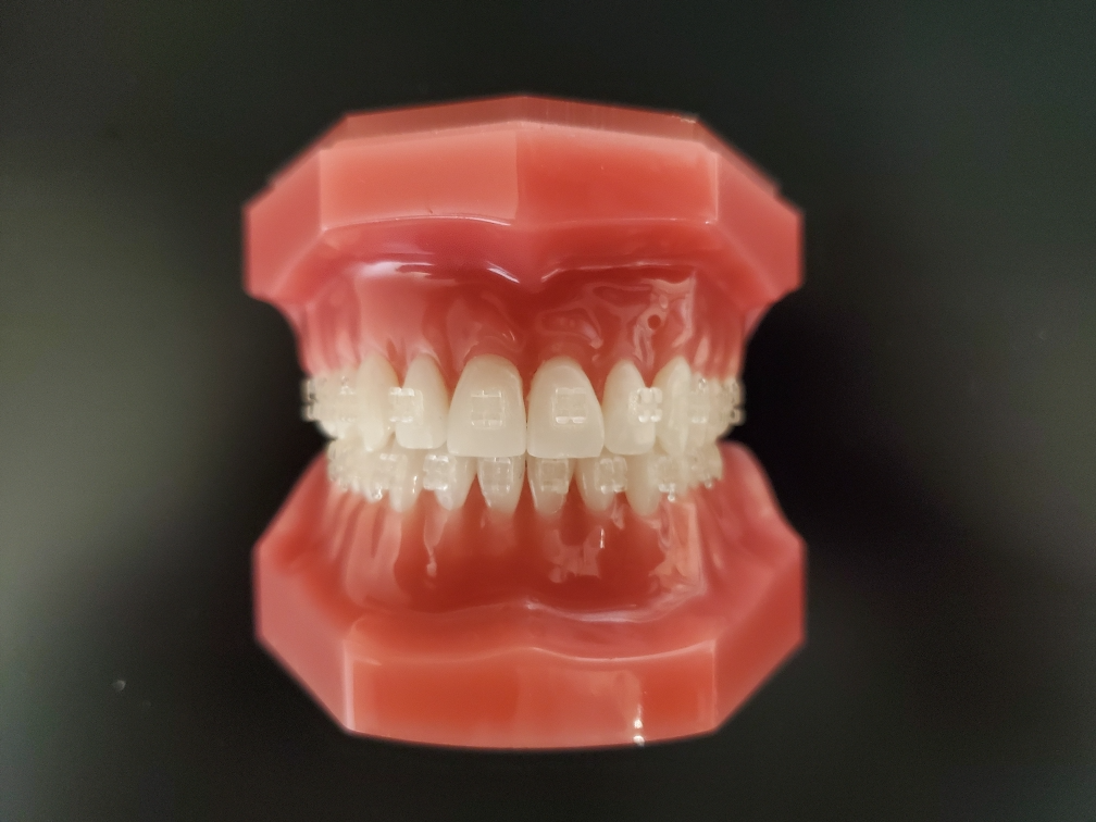 Where to get Clear Braces in San Diego
